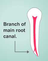 branch of a root canal