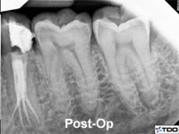 root canal post operative